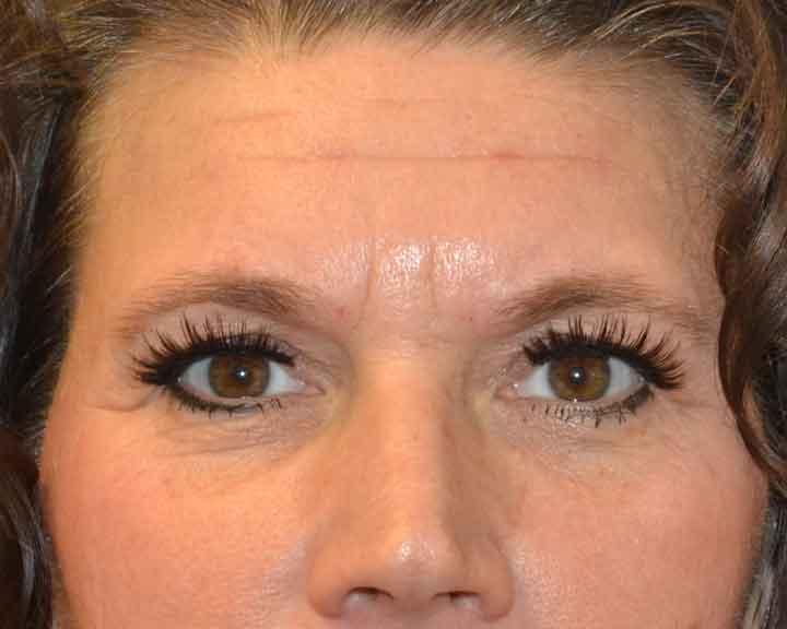 Reduce bruising facial fillers