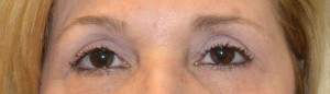 upper-blepharoplasty-eye-2-after