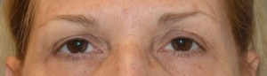 upper-blepharoplasty-eye-2-before