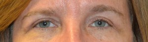upper-blepharoplasty-eye-3-after