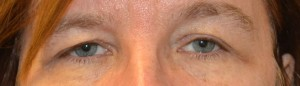 upper-blepharoplasty-eye-3-before