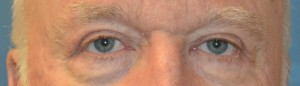 upper-blepharoplasty-eye-4-after