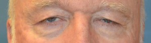 upper-blepharoplasty-eye-4-before