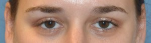 upper blepharoplasty-eye--after
