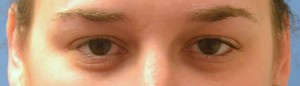 upper blepharoplasty-eye--before